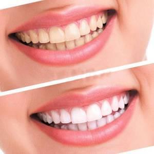 Dụng cụ làm trắng răng